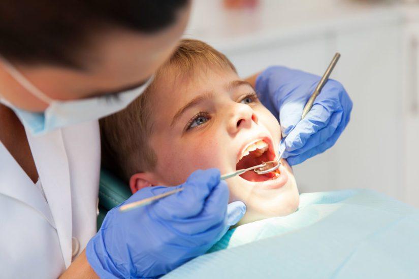 selladores dentales para niños