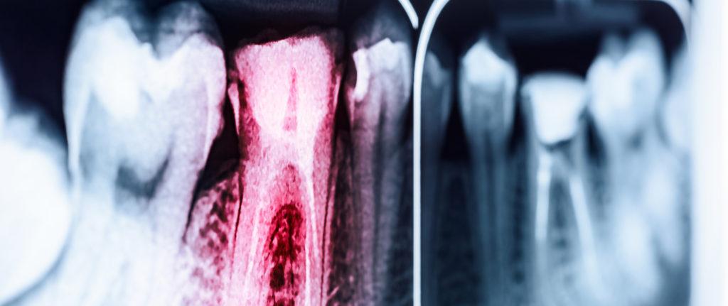 endodoncia - clinica dental susana ocio